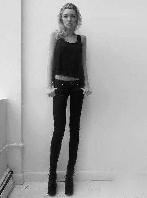 skinny girl, skinny, underweight and thin body